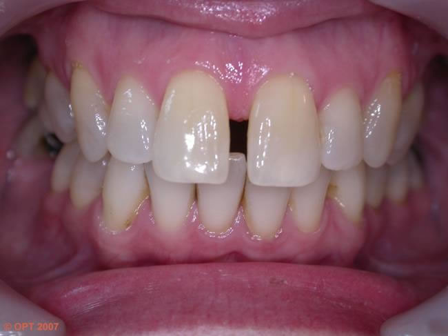 how to know if you have a cavity with braces